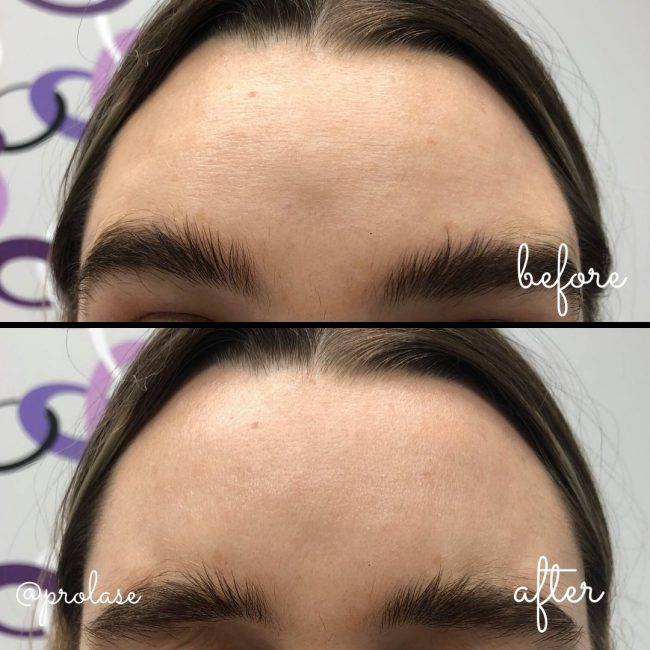 Botox Treatment for Forehead Lines.