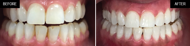 teeth-whitening-ba-05