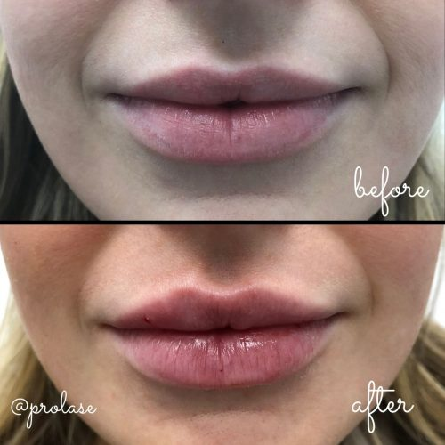 juvederm-lips-before-and-after-prolase-laser-clinic-la-03