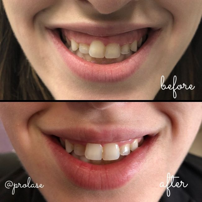 """Botox injectable for the treatment of """"gummy smile""""."""