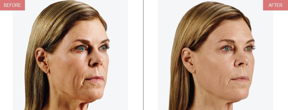 Dermal-Fillers – Prolase Laser Clinic