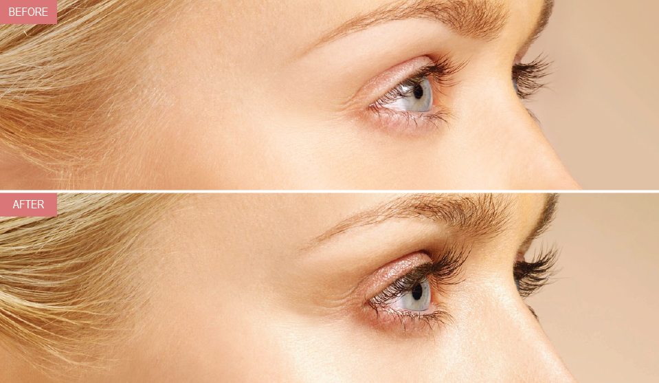 Latisse Eyelash Treatment Prolase Laser Clinic
