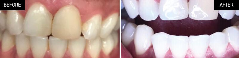 teeth-whitening-ba-02