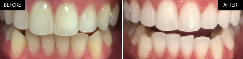 teeth-whitening-ba-03