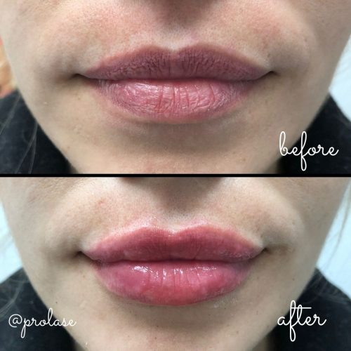 juvederm-lips-before-and-after-prolase-laser-clinic-la-02