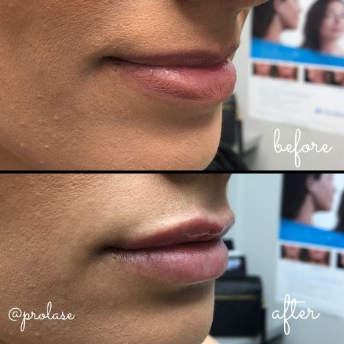 volbella-before-and-after-prolase-laser-clinic-la-01