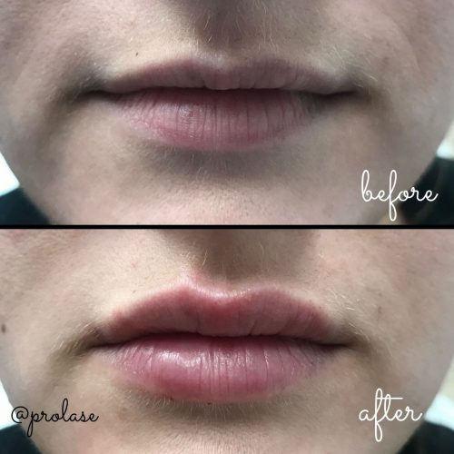volbella-before-and-after-prolase-laser-clinic-la-02