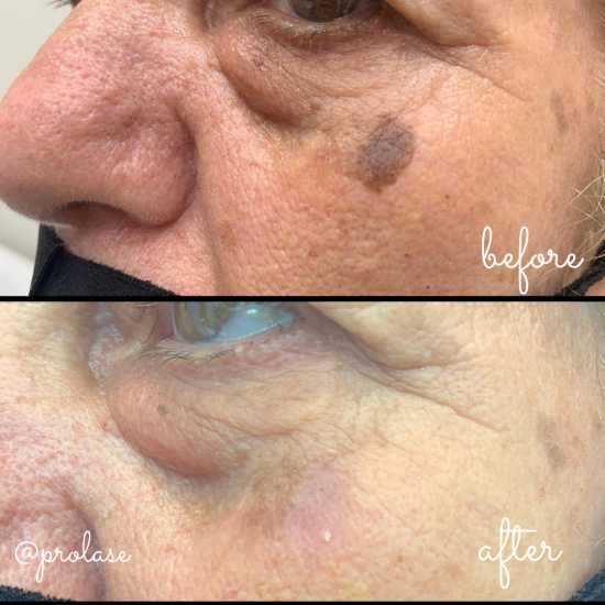 Age spot removal using Intense Pulse Light (IPL) technology. Available at Prolase Laser Clinic.